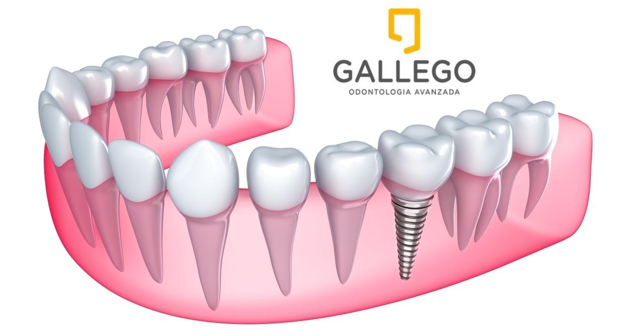 preguntas frecuentes de implantes dentales en Sevilla