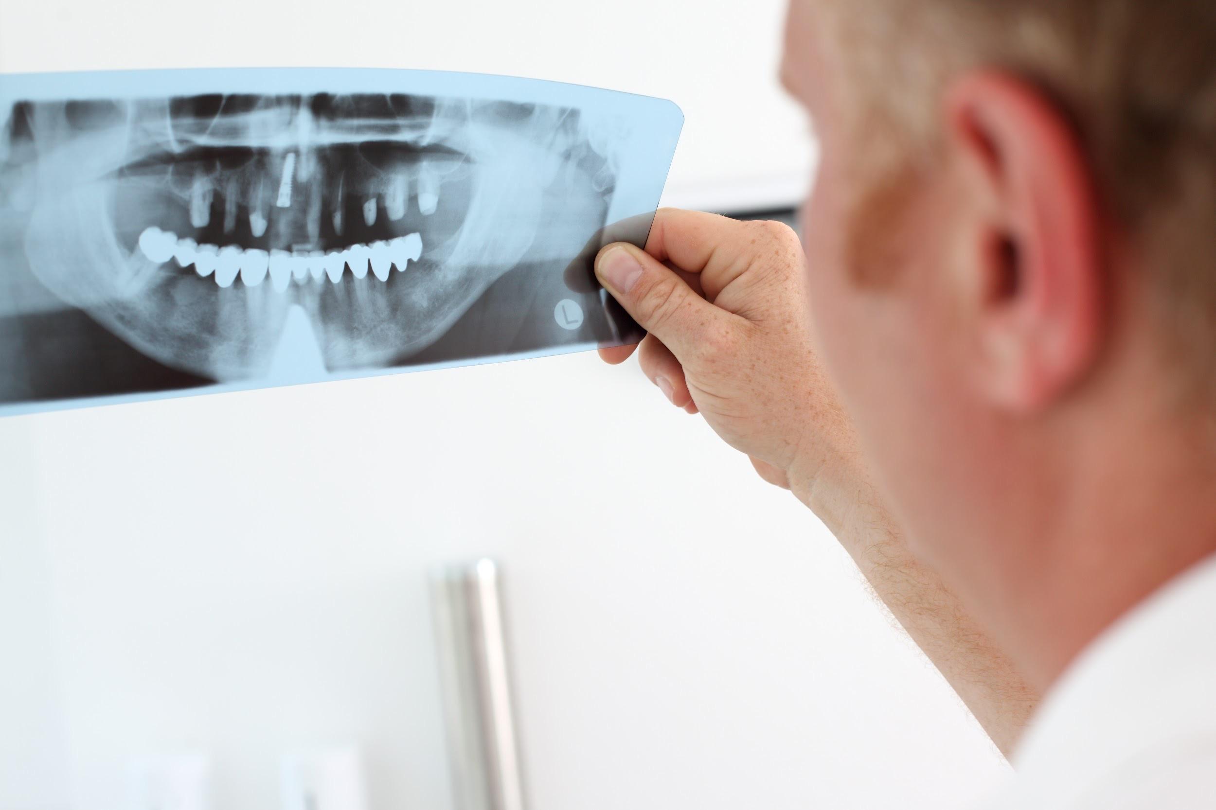 intervención de implantes dentales