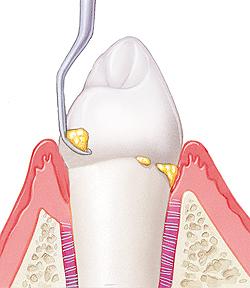 periodoncia_tratamiento