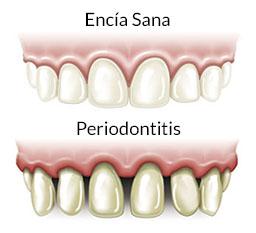 periodontitis-dif