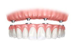 implantes para mejora estética dental