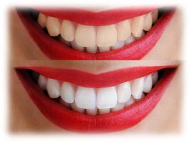 dientes perfectos con estética dental