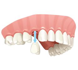 extracción dental en Sevilla