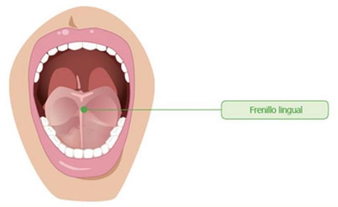 frenillo lingual eliminación