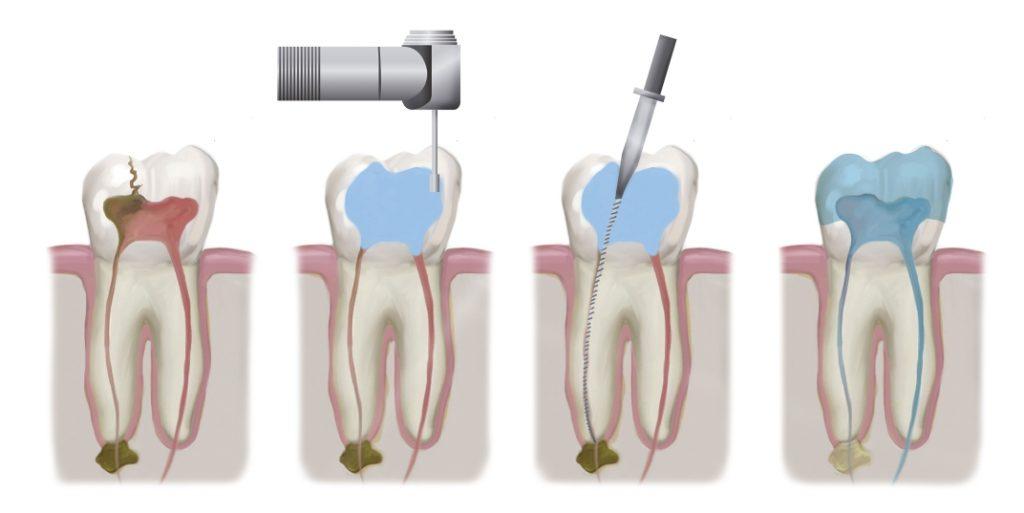 ¿que es una endodoncia?