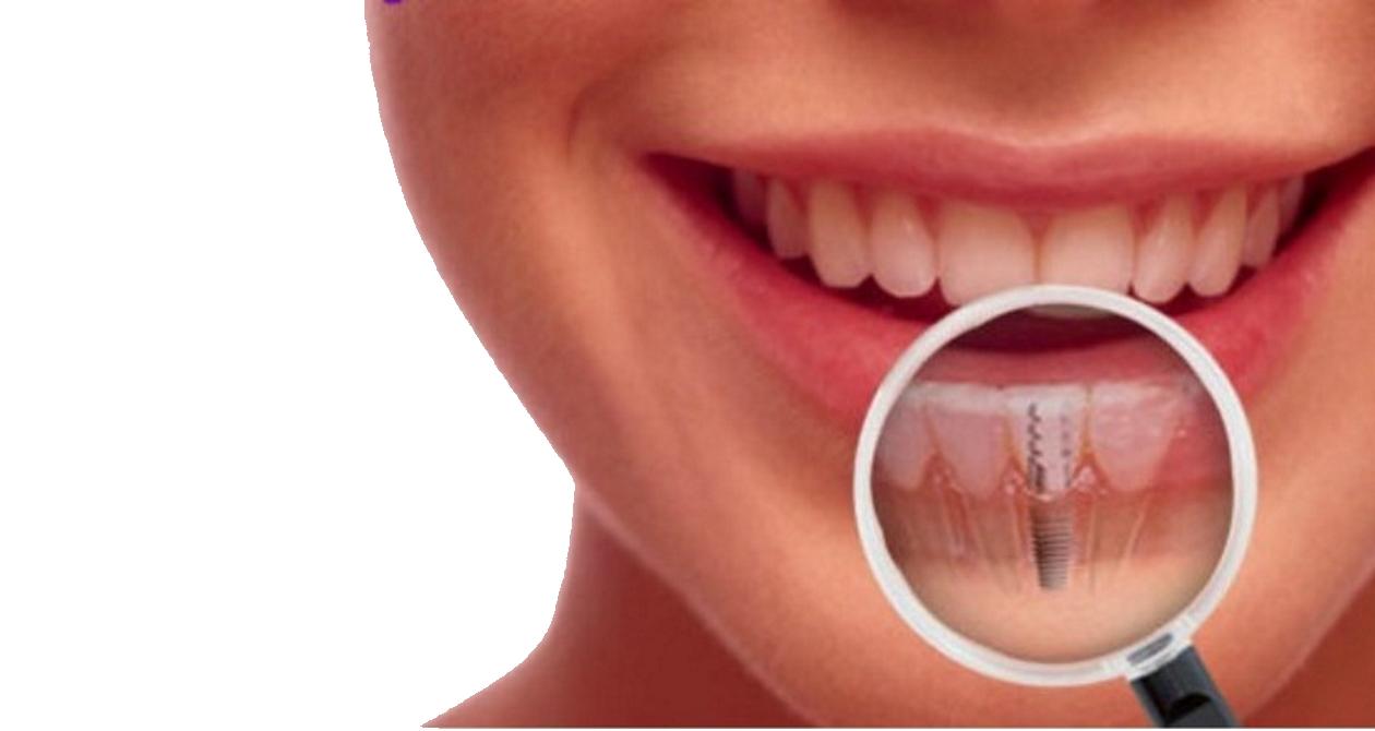 intervención de implantes dentales en Sevilla