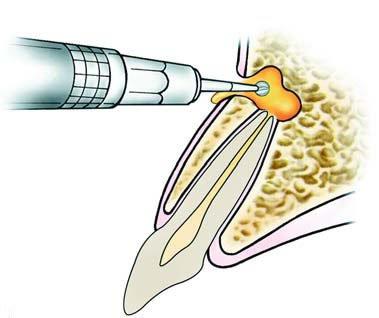 Fenestración dentaria