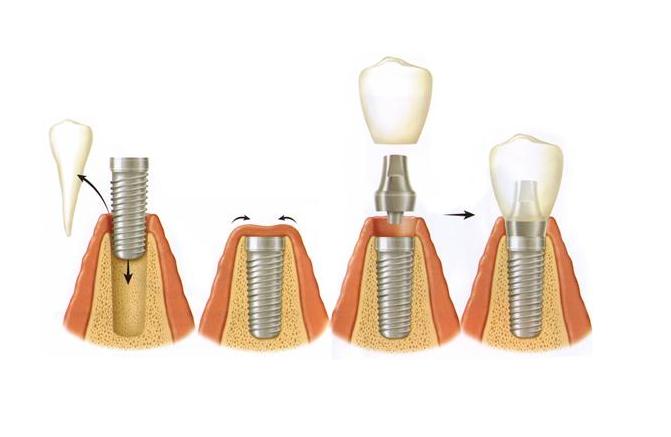 Proceso del implante dental